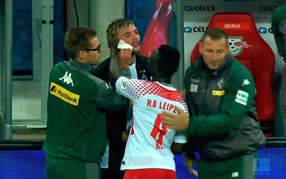 9月17日讯 在昨天门兴与RB莱比锡的比赛中,莱比锡中场凯塔抬脚过高踹到了门兴中场克拉默的脸上,他也因此被红牌罚下。克拉默在赛后表示,自己的情况并没有看上去的那么严重。 在比赛的第83分钟时,凯塔抬脚过高,他的鞋底直接撞到了克拉默的脸上,他也因此被红牌罚下。克拉默流血倒地,在接受治疗后他示意自己能够继续比赛。