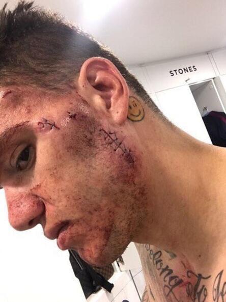 埃德森脸部外伤经过缝针治疗 目前已经重返训练