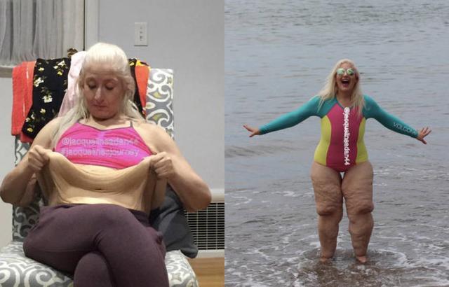 """380斤女子成功暴减240斤后,遇到更烦心的事,皮肤几乎""""坍塌"""""""